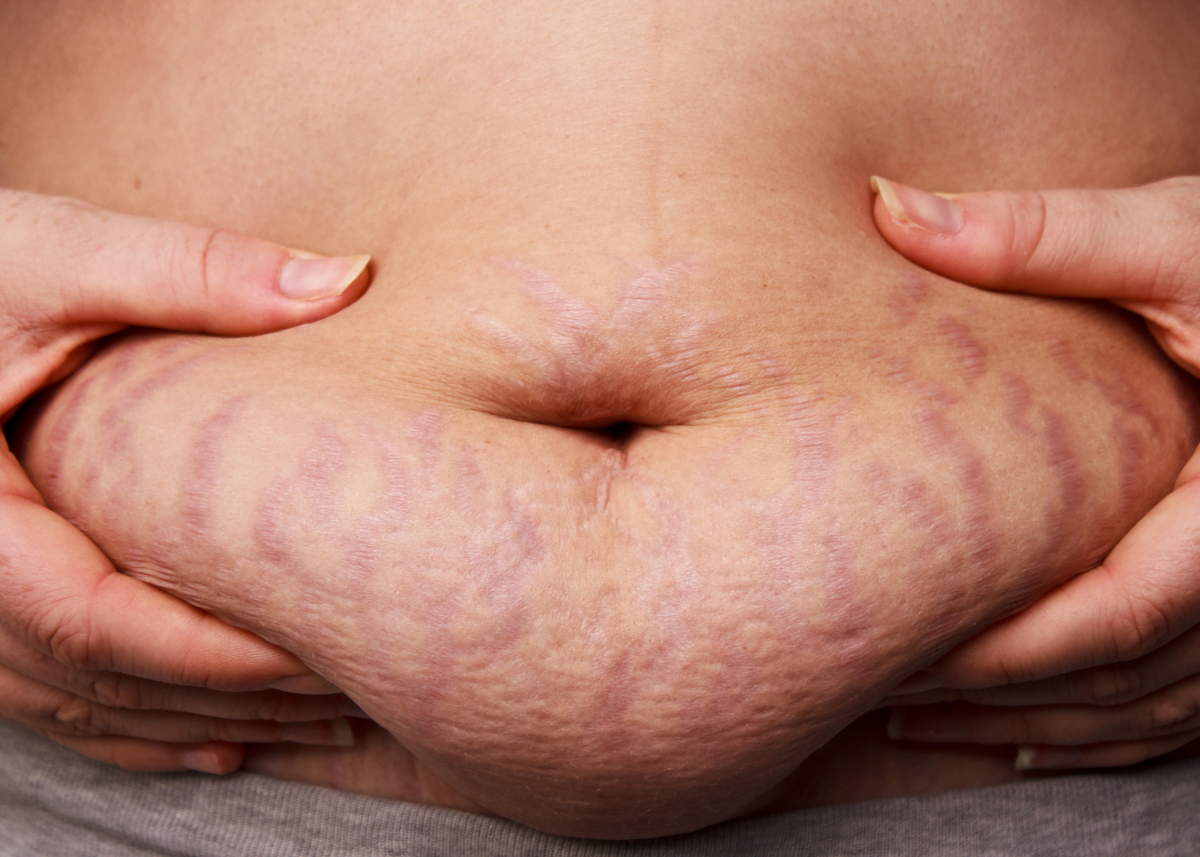 stretch marks change your body after pregnancy